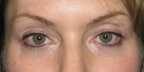 Eyeliner permanent cosmetics, after photo
